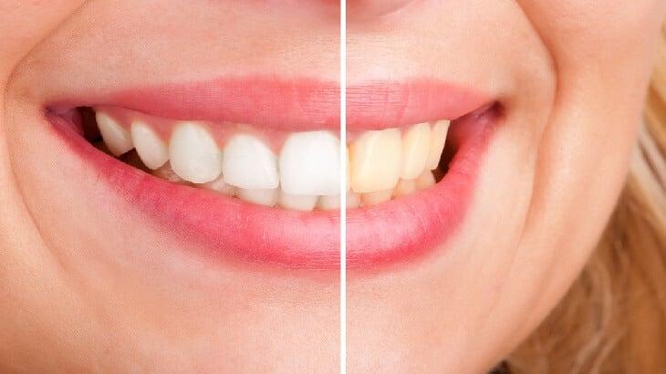 13 وصفة لتبييض الاسنان في المنزل