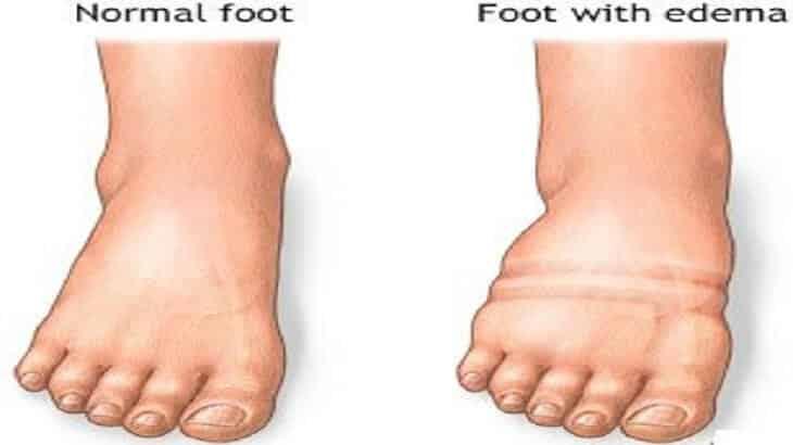 اسباب تورم القدمين وطرق علاجها بالاعشاب