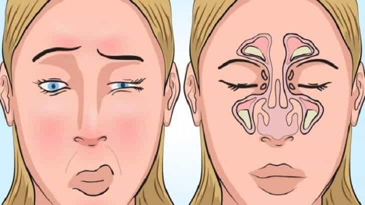 أسباب انسداد الأنف وصعوبة التنفس وطرق العلاج