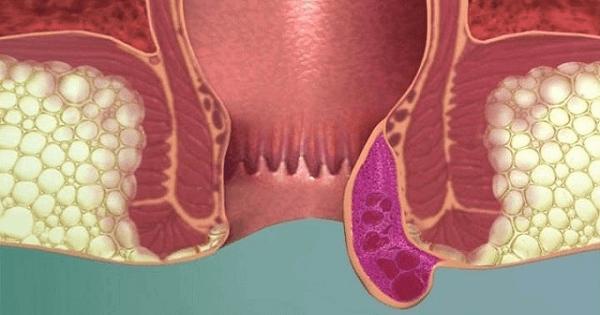 أعراض البواسير في بدايتها وأسبابها وكيفية علاجه