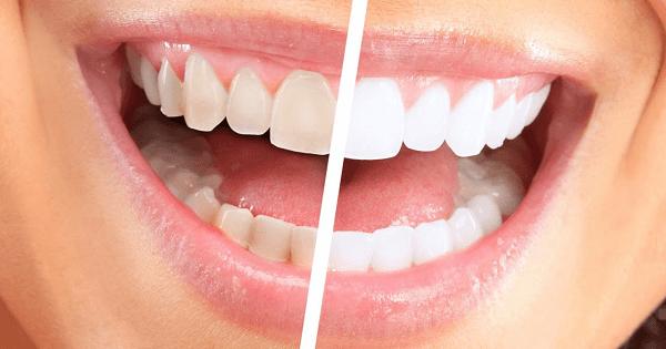 ازالة الجير من الاسنان بالطب البديل في المنزل