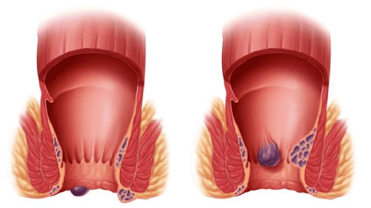 اسباب خروج دم مع البراز دون الم وكيفية علاجه