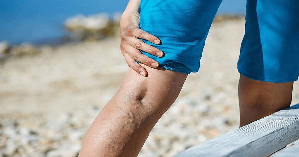 طرق مميزة لعلاج الدوالي بالأعشاب والزيت