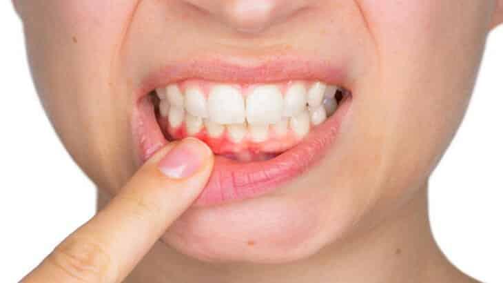 علاج التهاب اللثة الشديد ورائحة الفم الكريهة