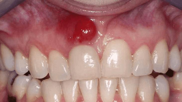 علاج التهاب اللثة الشديد ورائحة الفم الكريه