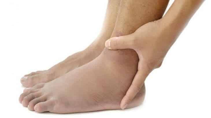 علاج تورم القدمين عند النساء بالاعشاب الطبيعية