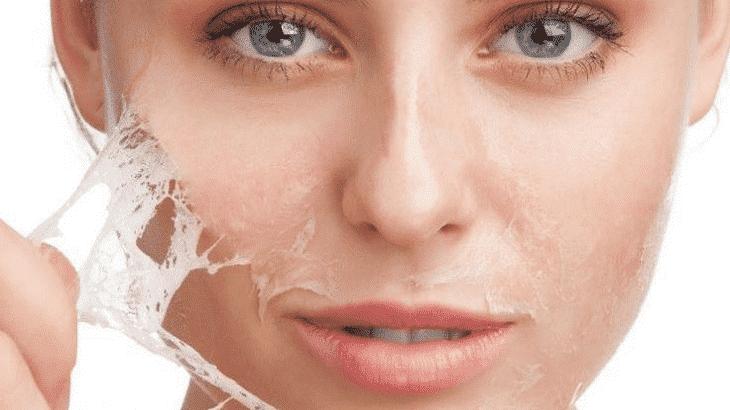 13وصفة طبيعية لعلاج حساسية الوجه نهائيا