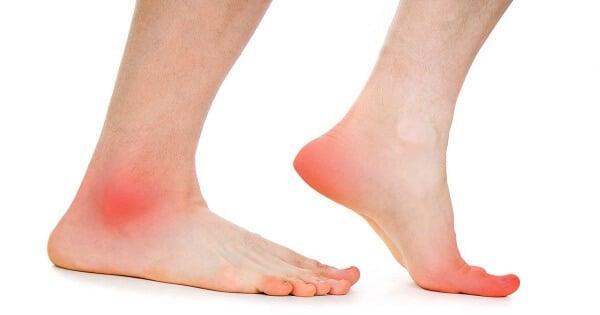 أعراض جلطة القدم بالتفصيل وعلاجها