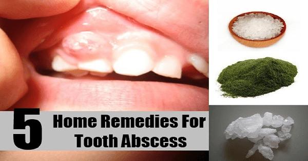أفضل مضاد حيوي طبيعي لالتهاب الأسنان
