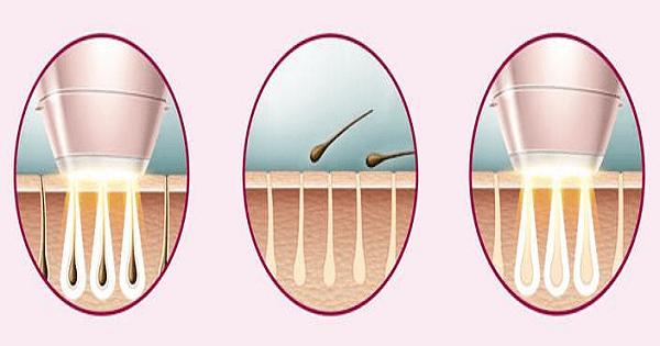 افضل طريقة لإزالة الشعر من المناطق الحساسة