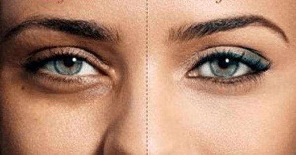 طريقة إزالة الهالات السوداء تحت العين بأسرع وقت