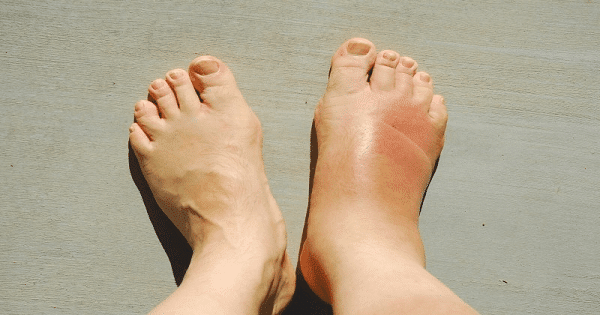 طريقة علاج تورم القدمين لمريض السكر بالأعشاب