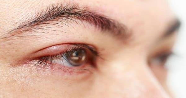 علاج الانتفاخ تحت العين بالاعشاب في المنزل