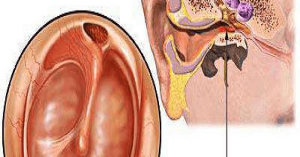 علاج التهاب الاذن الوسطى عند الكبار بالاعشاب الطبيعية