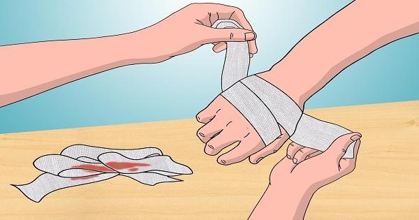علاج الحروق السطحية في المنزل بالتفصيل