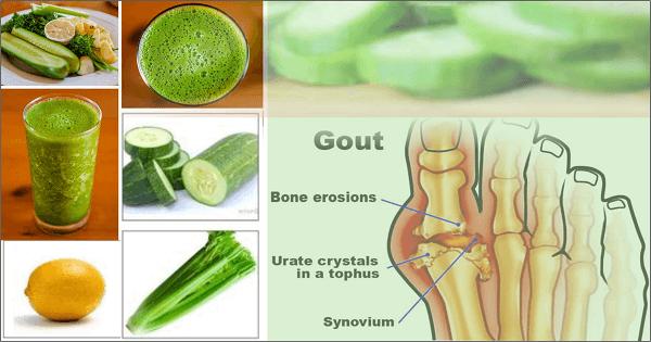 علاج النقرس والأملاح بالأعشاب الطبيعية