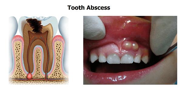 علاج خراج الأسنان بالمضاد الحيوي بالتفصيل
