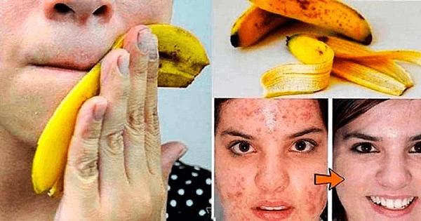 فوائد قشر الموز للبشرة وطرق استخدامه