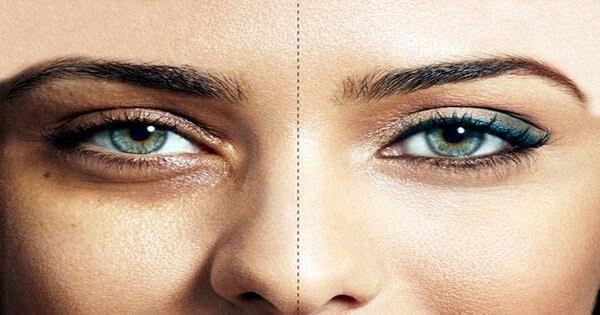 كيفية إزالة الهالات السوداء تحت العين بأسرع وقت بالصور
