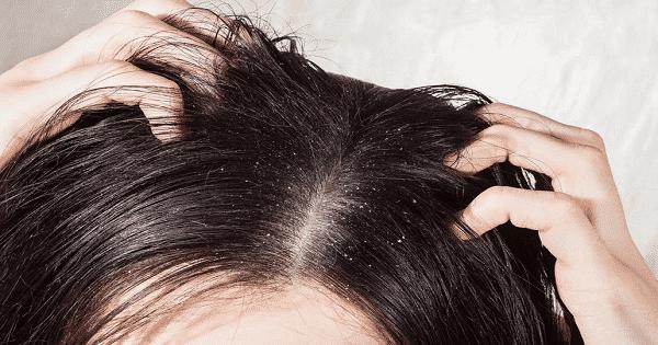 كيفية التخلص من قشرة الشعر نهائيا في أسرع وقت