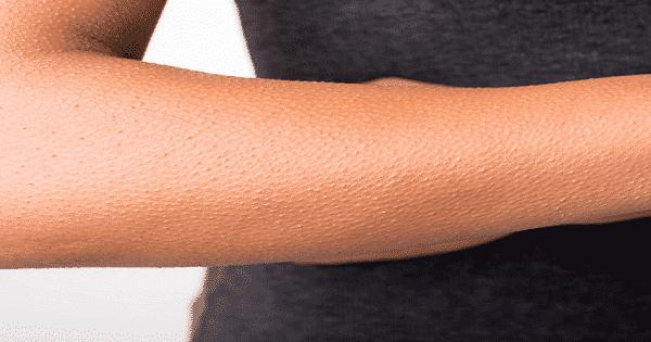 كيفية علاج نمو الشعر تحت الجلد