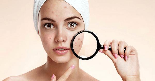 11 نصيحة لعلاج حبوب الوجه بسرعة