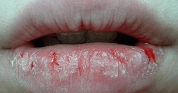 7 طرق لعلاج تشقق الشفايف الشديد وسوادها
