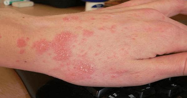 9 أعشاب طبيعية لعلاج حساسية الجلد في المنزل
