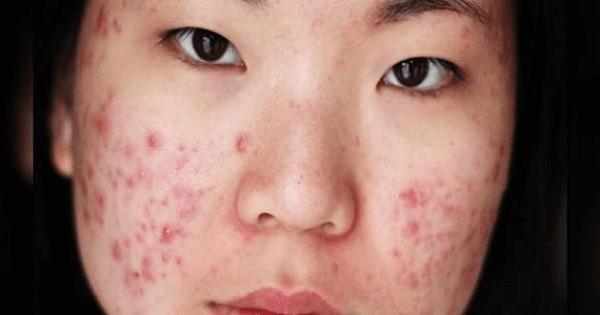 نصائح لعلاج بثور الوجه بسرعة