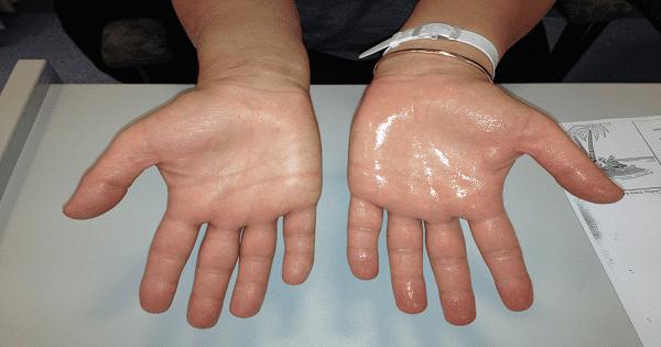 اسباب تعرق اليدين عند الاطفال وطرق علاجها