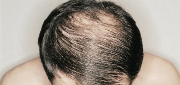 افضل بخاخ لانبات الشعر المتساقط