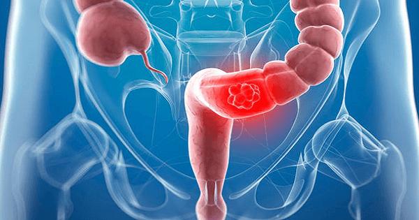 الفرق بين اعراض سرطان القولون والقولون العصبي بالتفصيل
