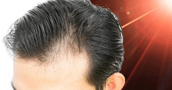علاج تساقط الشعر الشديد بالاعشاب والقران الكريم