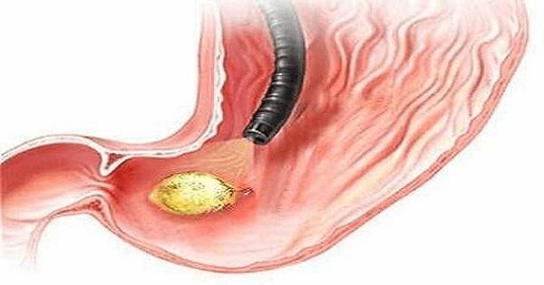 علاج قرحة المعدة والاثنى عشر بالاعشاب الطبيعية