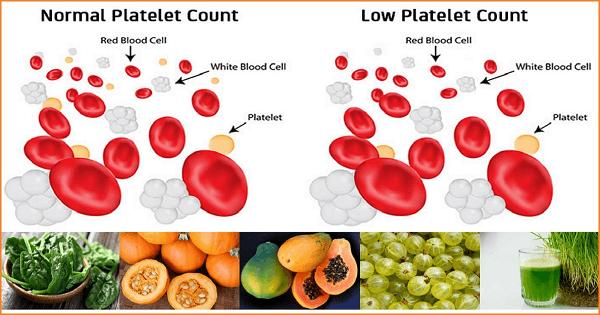 علاج نقص الصفائح الدموية بالغذاء والأعشاب