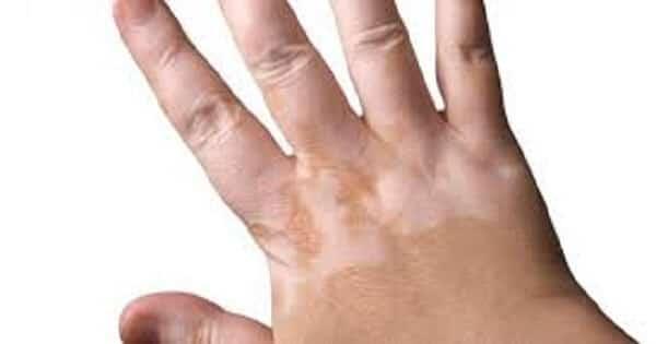 ماهو مرض الصدفية اسبابه وعلاجه