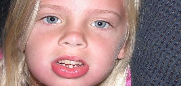 أساسيات انتفاخ الوجه المفاجئ عند الأطفال وطرق علاجه