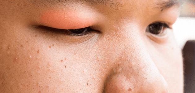 اسباب انتفاخ الوجه والجسم