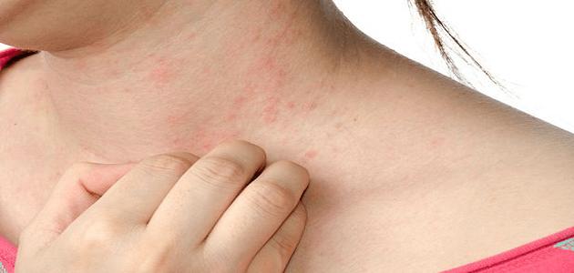 أسباب حكة الجسم المستمرة وعلاجها بالأعشاب