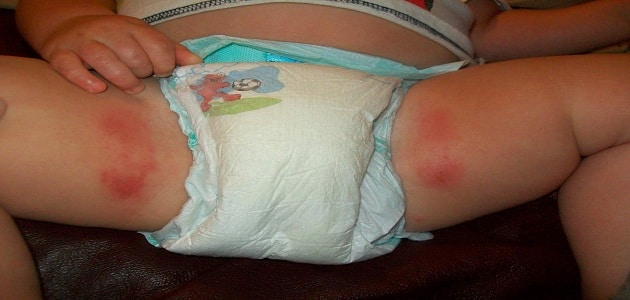 افضل طريقة لعلاج تسلخات الاطفال