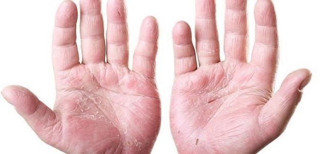 علاج أكزيما الجلد واليدين