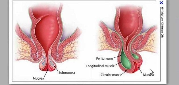 علاج البواسير الخارجية بدون جراحة