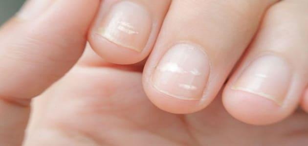 علاج النقط البيضاء في الأظافر عند الأطفال