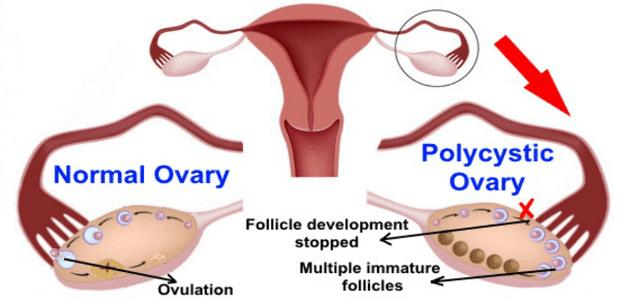 علاج تكيس المبايض والحمل بالأعشاب