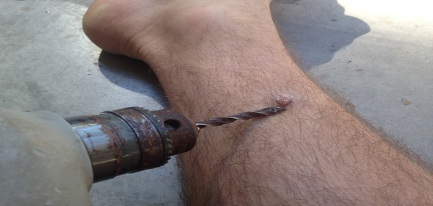 علاج عين السمكة في القدم بالثوم