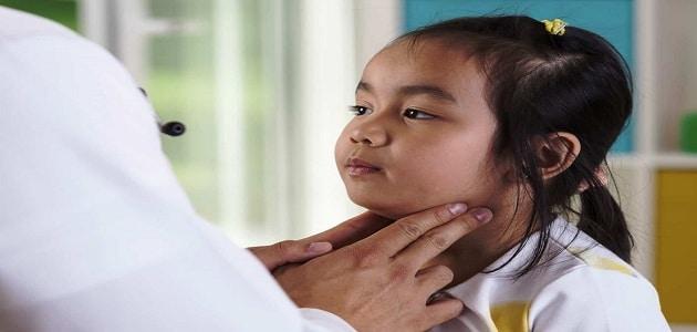 علاج مرض النكاف والعقم