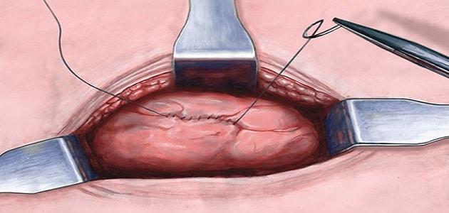 عملية استئصال (ازالة) الرحم