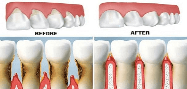 نصائح فعالة للعناية بالفم والأسنان واللثة
