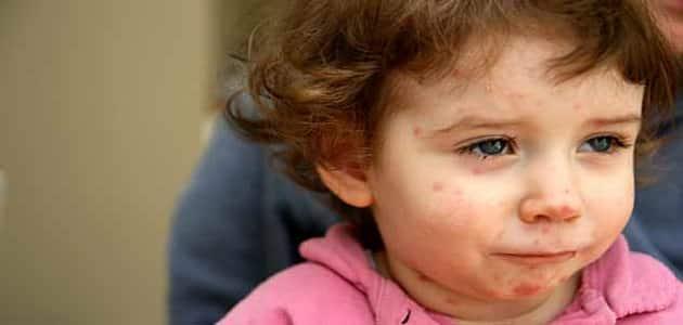أعراض الجدري عند الأطفال وكيفية علاجه
