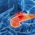 أعراض سرطان البنكرياس المنتشر وطرق علاجه